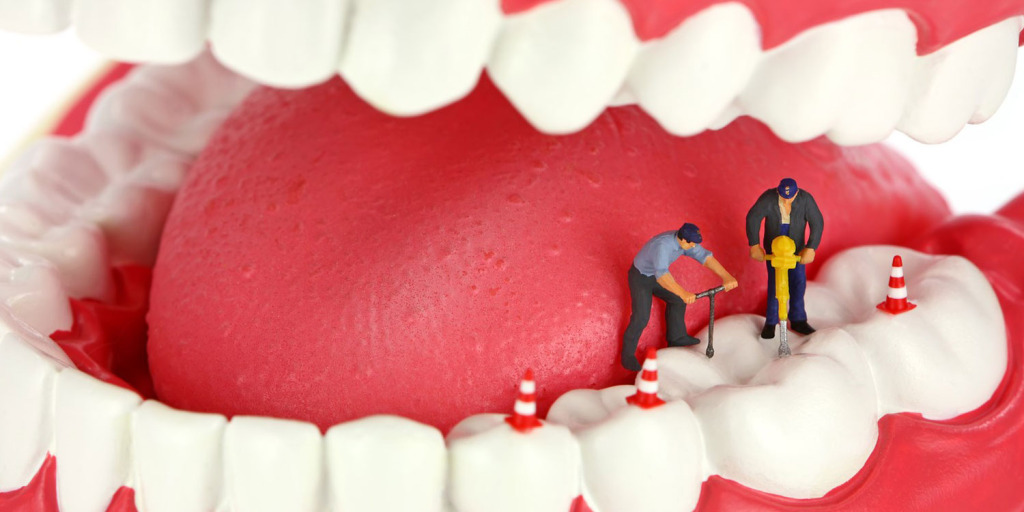 Debunking The Root Canal Myths