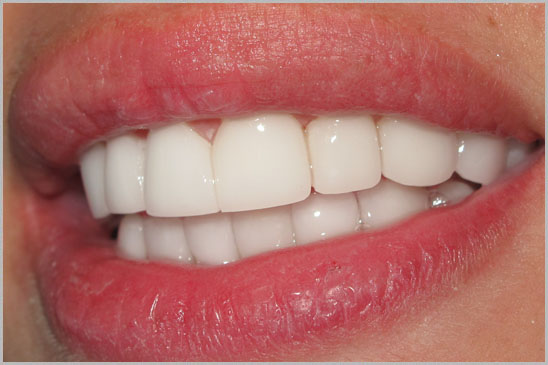 Veneers: The Dental Upgrade
