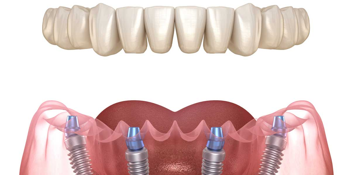 Options for Full Mouth Tooth Replacement in Pasadena, CA