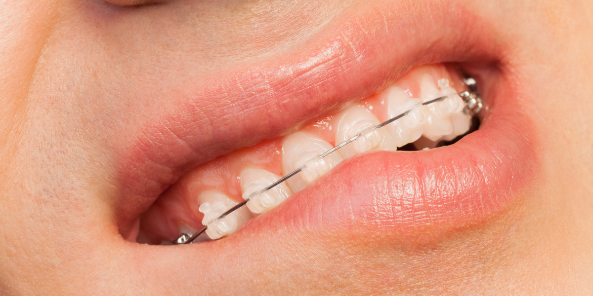 7 Simple Ways For Reducing Pain and Discomfort With Braces In Pasadena, CA