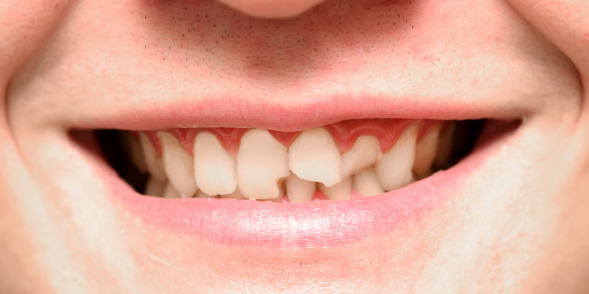 Broken Tooth In Pasadena, CA: What To Do With Your Front Teeth