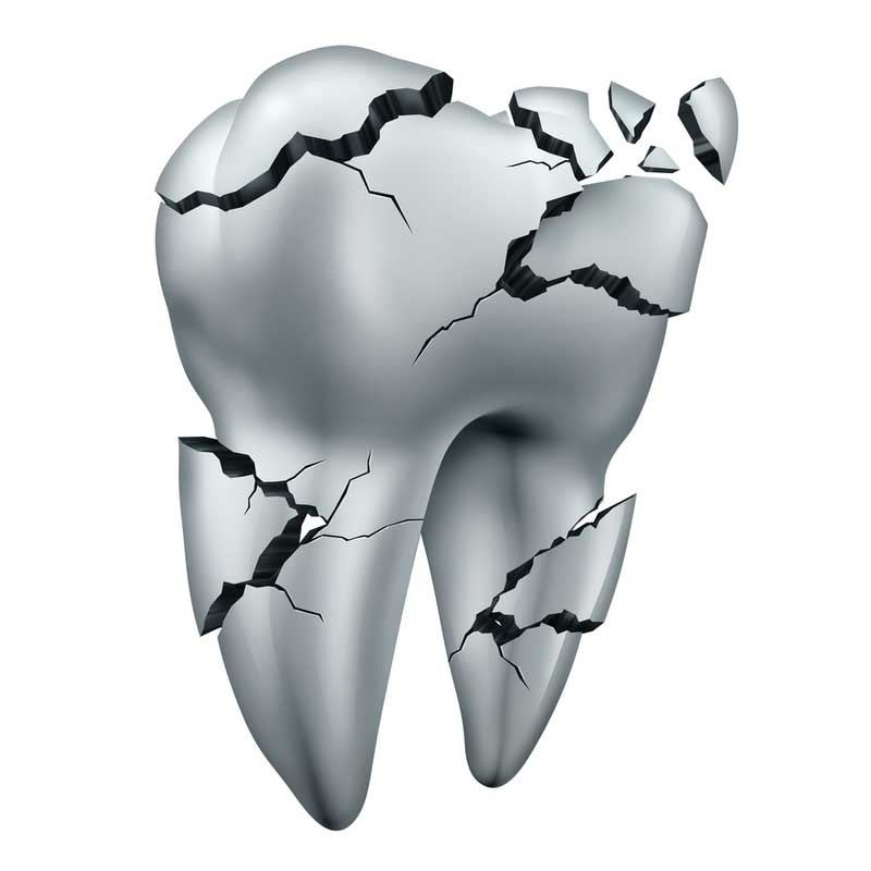 chipped-tooth-in-pasadena-ca