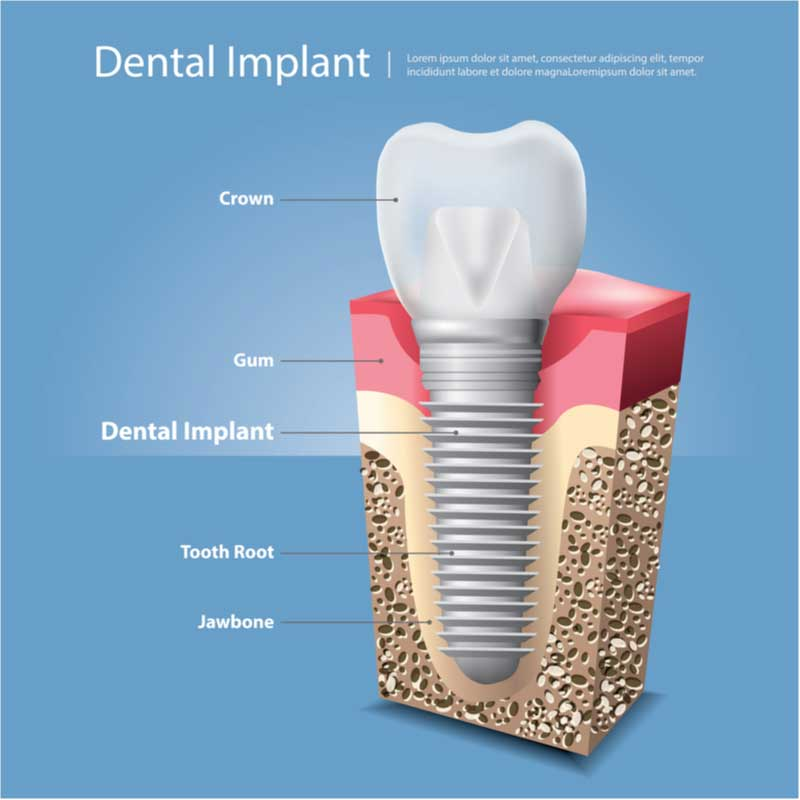 cross-section-of-an-implant-in-pasadena-ca