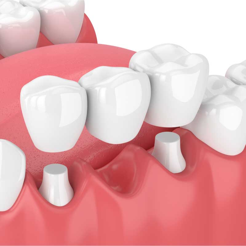 dental-bridge-in-pasadena-ca