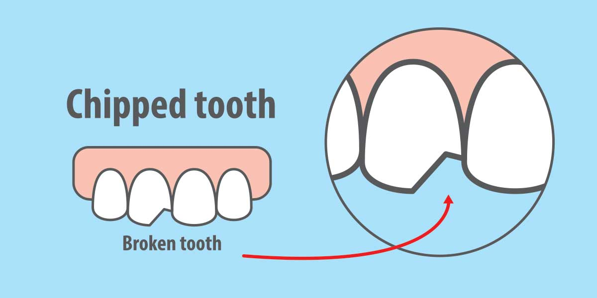 Solutions for a Chipped Tooth in Pasadena, CA