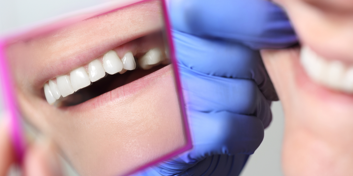Tooth Extraction in Pasadena, CA