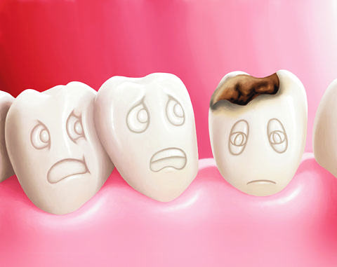 Safely Fighting Tooth Decay